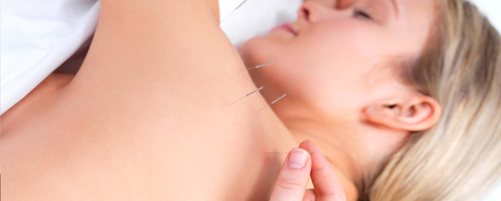 Dry Needling and Physical Therapy